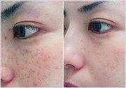 Удаление пигментации,  купероза,  лечение и омоложение кожи.
